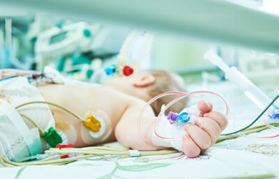 baby with wires